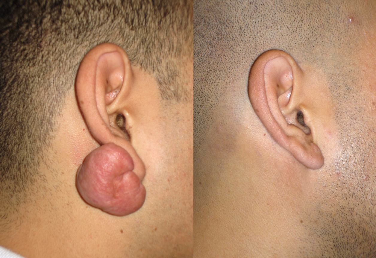 Keloid-Removal1
