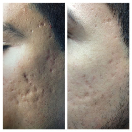 scar 3